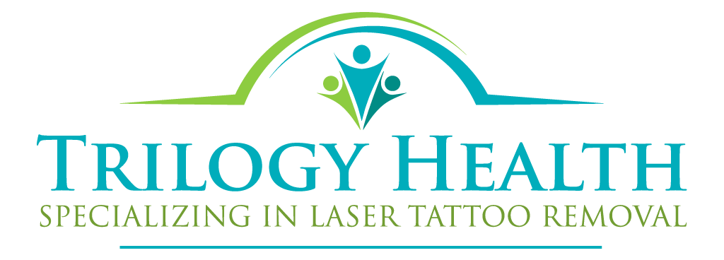 San Diego Tattoo Removal